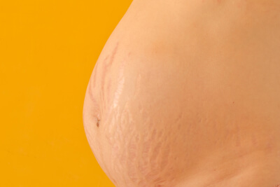 Estrías vientre